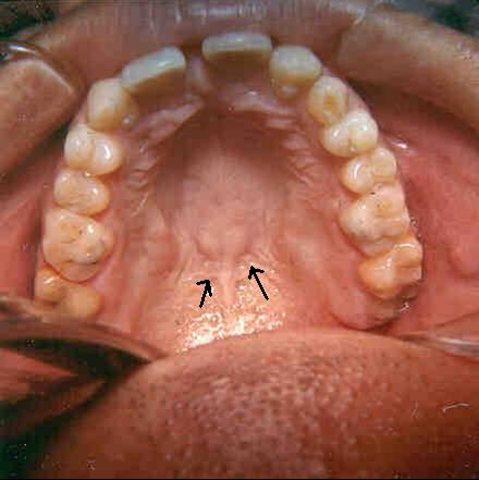 fovea palatinus (openings that secret mucous)