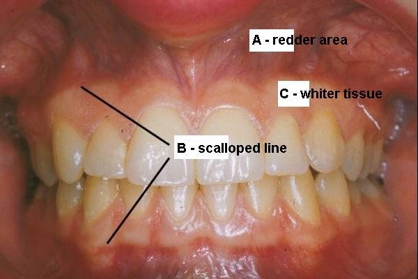 A-alveolar mucosa B=mucogingival junction