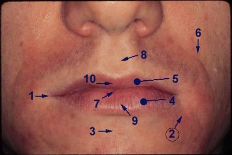 labio marginal sulcus (groove from lip to cheek)