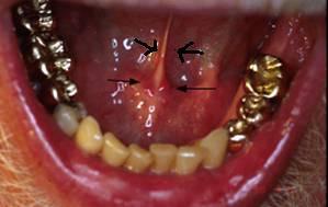 lingual frenum (frenums restrain tissue)