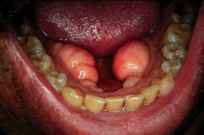 bilateral mandibular tori (plural of torus)