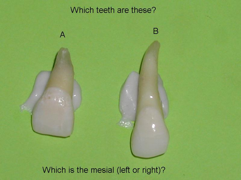 A=mx central mesial -rt   B=mx lateral-mesial left