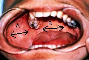 A=vestibule B=oral cavity proper A  B =oral cavity